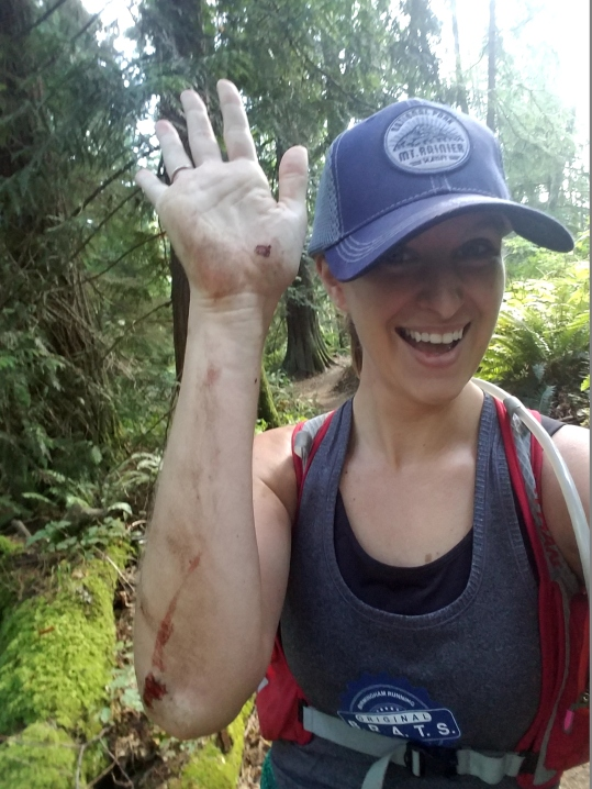 High-five for the klutzy trail runner